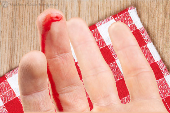 Schnittwunde sorgt für Blutflecken